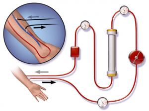 Figura 2- Processo de hemodiálise: https://www.portaldadialise.com/portal/o-que-e-hemodialise